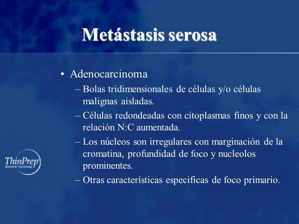 Metástasis serosa Adenocarcinoma