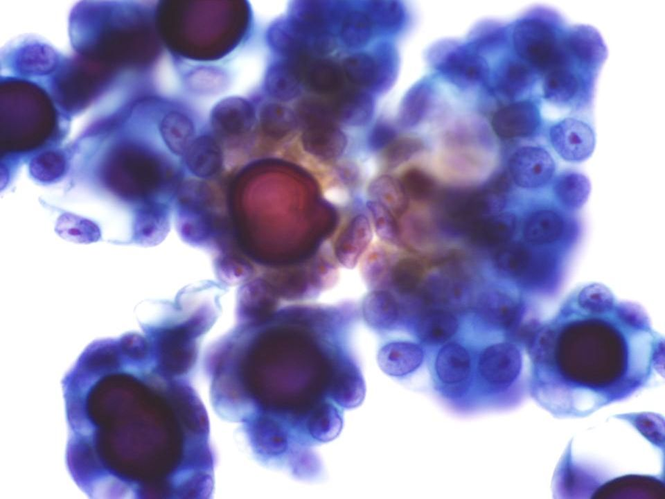 Líquido Peritoneal con un carcinoma endometrial metastásico a 60X con abundantes cuerpos de psammoma.