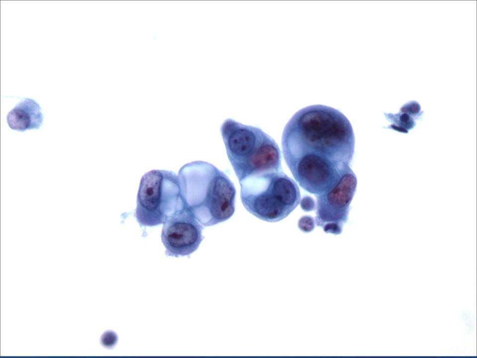 40X Adenocarcinoma Metastásico de mama.
