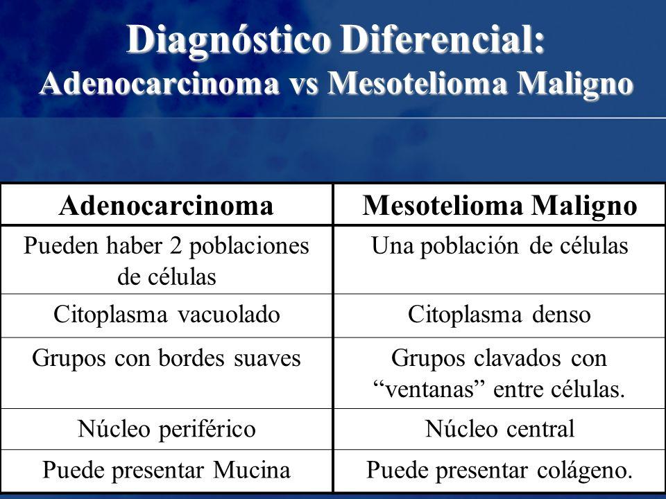 Diagnóstico Diferencial: Adenocarcinoma vs Mesotelioma Maligno