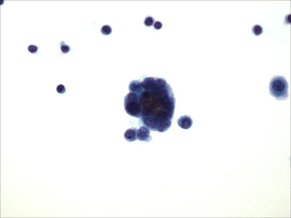 Carcinoma de Célula Pequeña de un líquido pleural a 40x