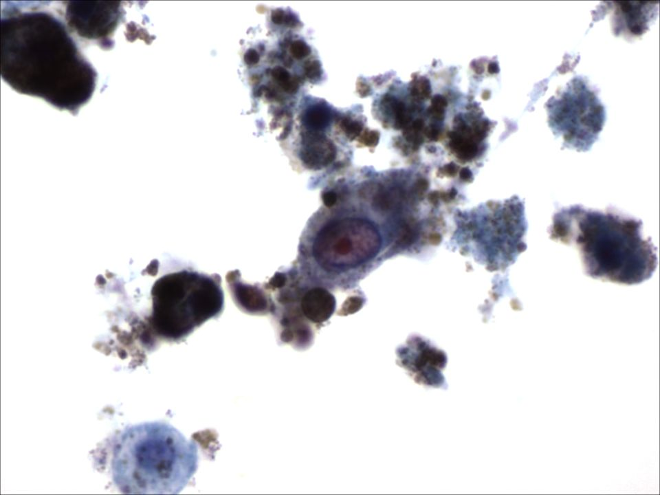 Melanoma en líquido pleural a 60x