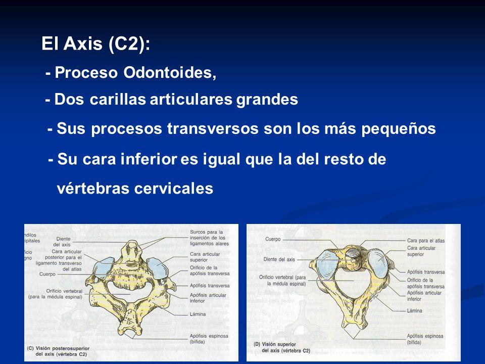 El Axis (C2): - Proceso Odontoides, - Dos carillas articulares grandes