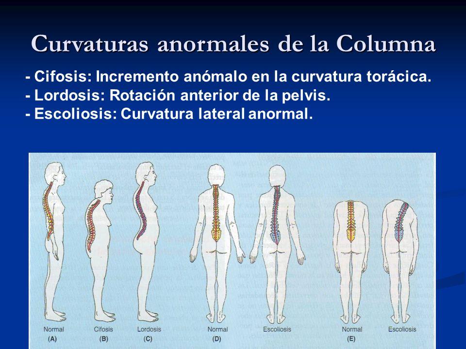 Curvaturas anormales de la Columna