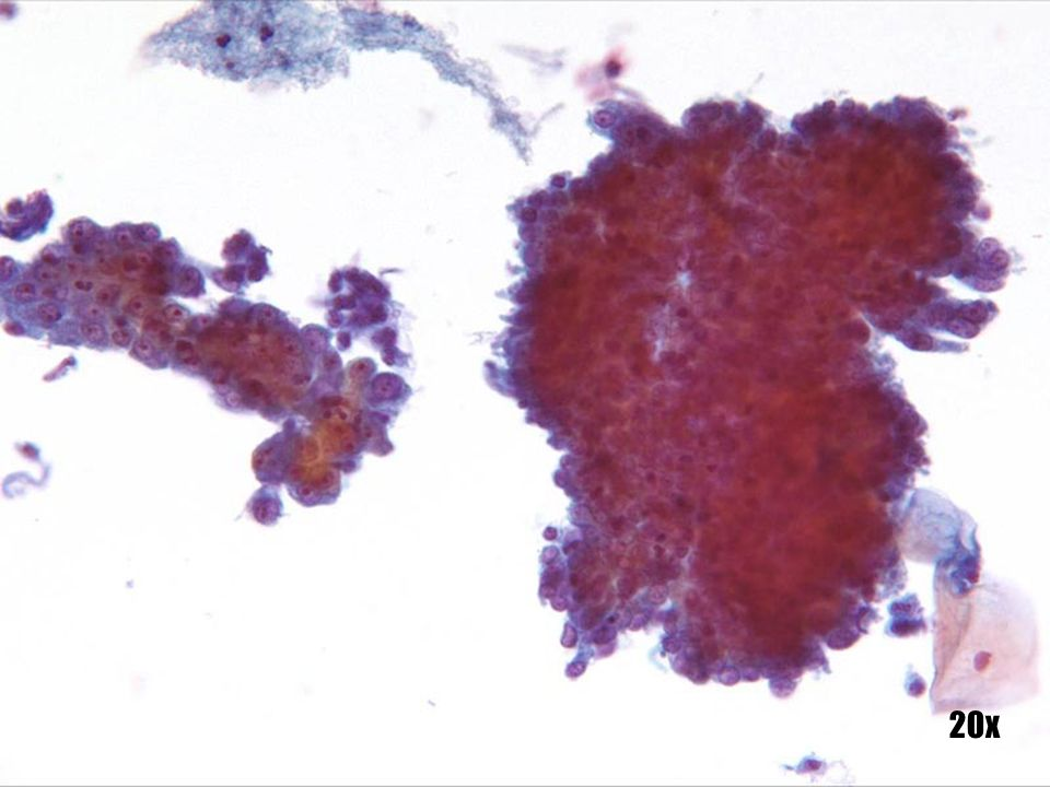 Adenocarcinoma endocervical y Adenocarcinoma in-situ (AIS) •Células de adenocarcinoma endocervical en grupos tridimensionales con contorno del grupo normal dentado a la izquierda. Los núcleos son grandes aunque la cromatina no es destacable. Evidencia de macronucleolos. •Al lado aparece una capa plana de Adenocarcinoma in situ con una apariencia más plana y aglomerada. Aparecen células individuales dentro de la placa como sello identificador del origen endocervical de las células. Núcleos invariablemente hipercromáticos. •La identificación del precursor AIS corrobora el origen endocervical de las células malignas.