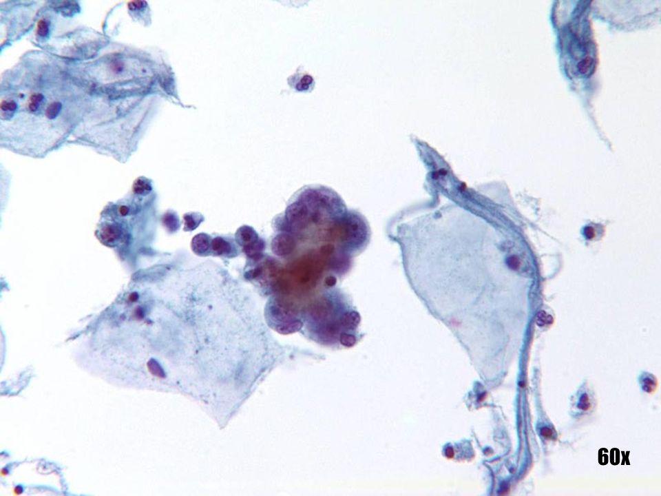 Adenocarcinoma endometrial •El grupo muestra las características clásicas de un adenocarcinoma, como las disposiciones tridimensionales tipo bola con contorno normal del grupo. Observe el pequeño tamaño de este grupo con respecto a una célula escamosa intermedia. En general, las células pequeñas en pequeños grupos apuntan a un origen endometrial. •La ingestión célula a célula y las características fagocíticas se asocian más comúnmente al adenocarcinoma endometrial. •Observe el fondo de la apoptosis de células aisladas, característico del origen endometrial. El grupo aislado aparece un poco fuera de contexto con el componente ectocervical benigno y maduro. La paciente era postmenopaúsica y no atrófica.