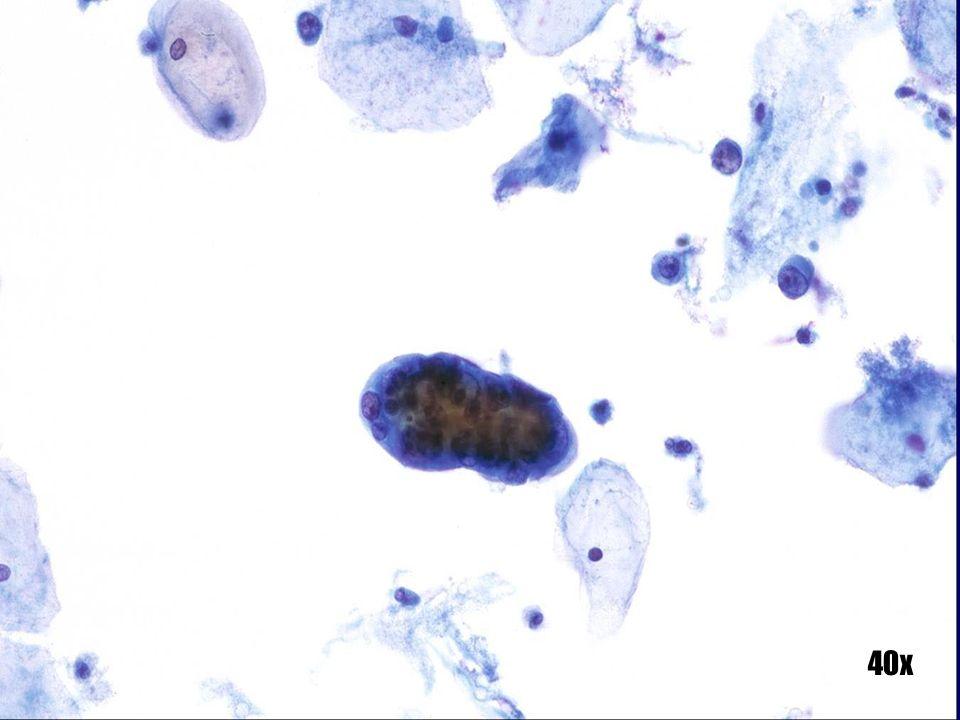 Adenocarcinoma endometrial •Grupo papilar de células epiteliales malignas uniformes y de aspecto suave. Observe la ampolla citoplásmica que se proyecta desde la parte superior del grupo. La formación de ampollas citoplásmicas se observa normalmente en grupos de células endometriales recientemente disgregados, tanto benignas como, en este caso, malignas. •Las células anormales aisladas de origen endometrial que aparece a las 2 en punto muestran los núcleos localizados en la periferia. •Patrón hormonal maduro.