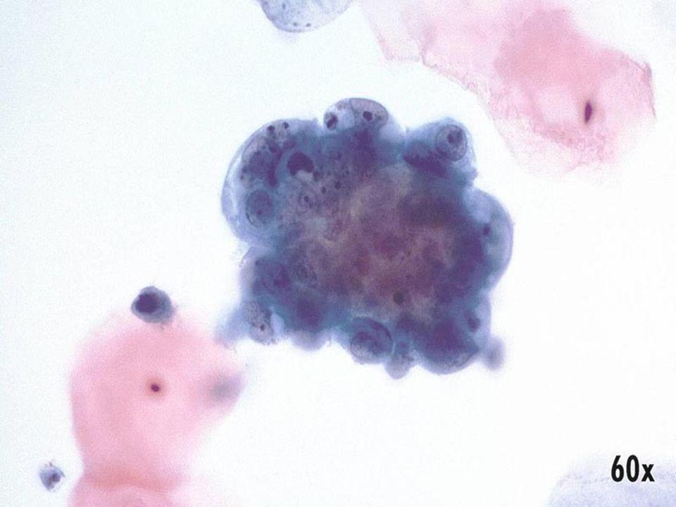 Adenocarcinoma endometrial •Grupo de células malignas con citoplasma vacuolado, nucleolos y linfocitos polimorfonucleares engullidos.
