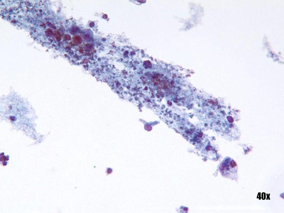 Adenocarcinoma endometrial •Otra presentación de exudado acuoso y restos endometriales observados clásicamente en el fondo de un adenocarcinoma endometrial.