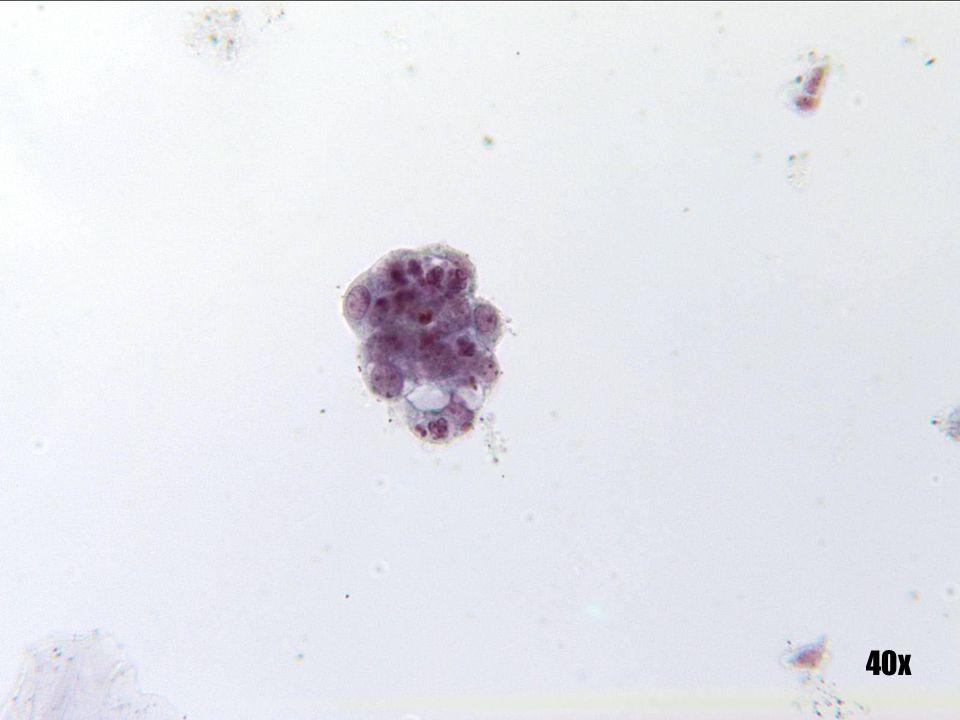 Adenocarcinoma endometrial •Grupo degenerado de células que apunta a un origen endometrial frente al SCC de células pequeñas, ya que la degeneración puede deberse a que las células que se están disgregando se recogen accidentalmente algún tiempo después. •Las células de SCC serán raspadas directamente y, por ello, suelen conservarse en buen estado. •La ingestión de polimorfos se observa más frecuentemente en el adenocarcinoma. La vacuolización mucinosa también es más característica del adenocarcinoma.