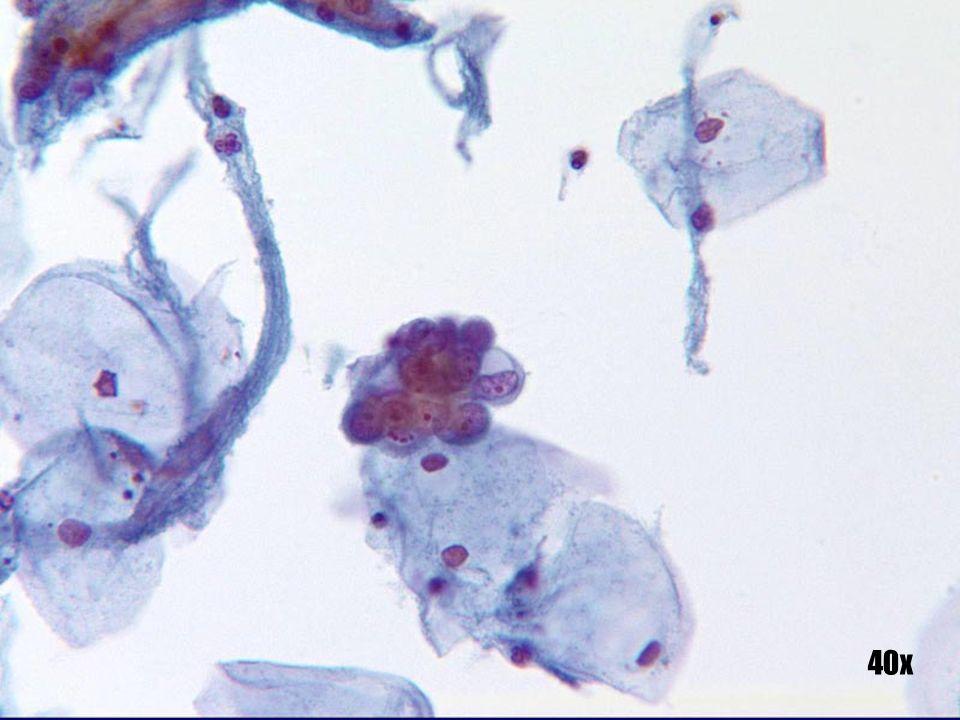 Adenocarcinoma endometrial •Grupo tridimensional aislado con bordes dentados y vacuolización mucinosa.