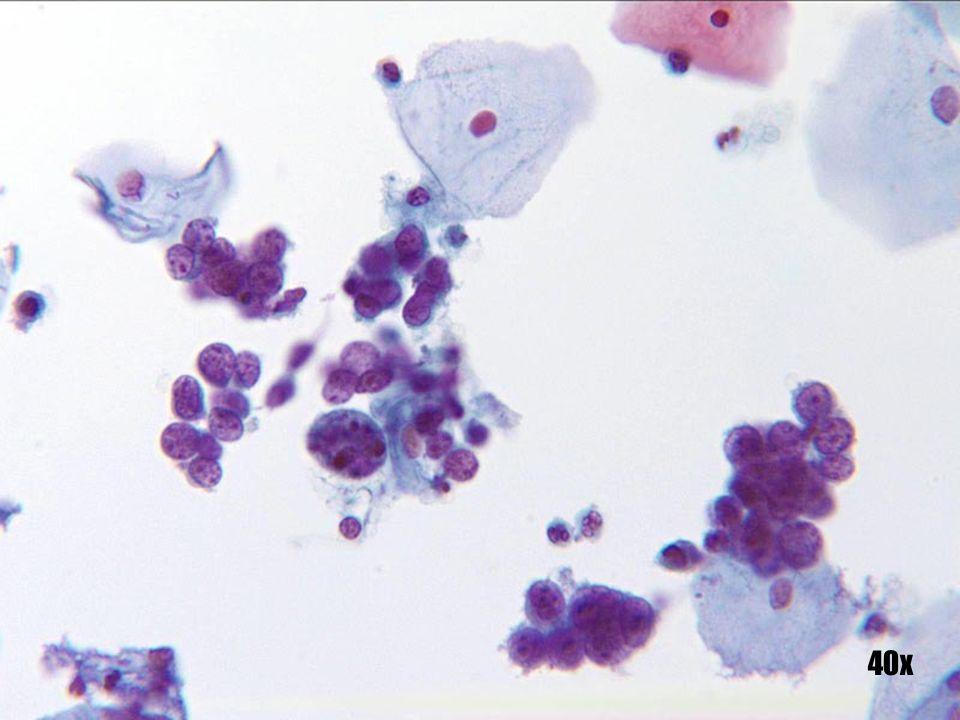SCC de células pequeñas •Capas poco cohesionadas y grupos de células malignas pequeñas. •Citoplasma escaso. •Múltiples nucleolos notables e irregulares. •Cromatina gruesa e irregular.