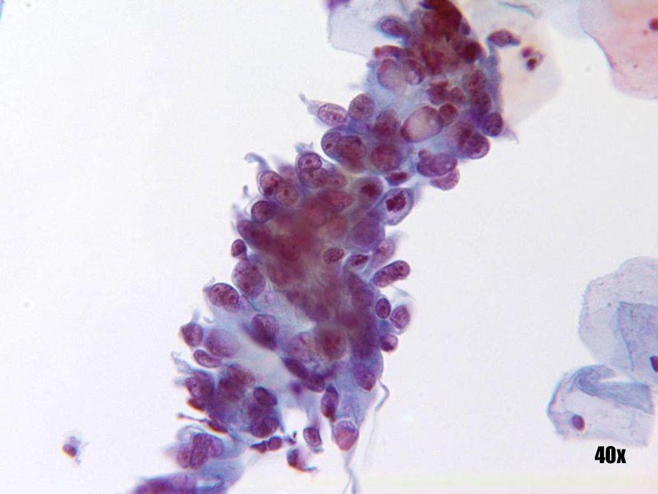 Adenocarcinoma in-situ •Observe las figuras mitóticas