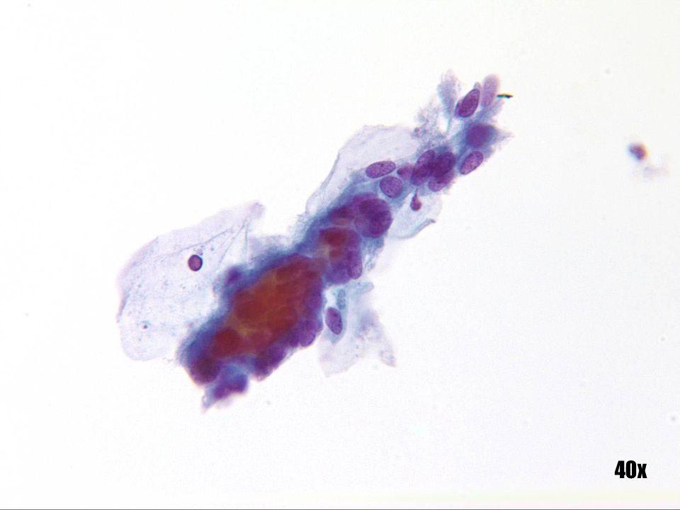 Metaplasia tubárica •Observe los cilios de la parte superior del grupo en la esquina inferior izquierda.