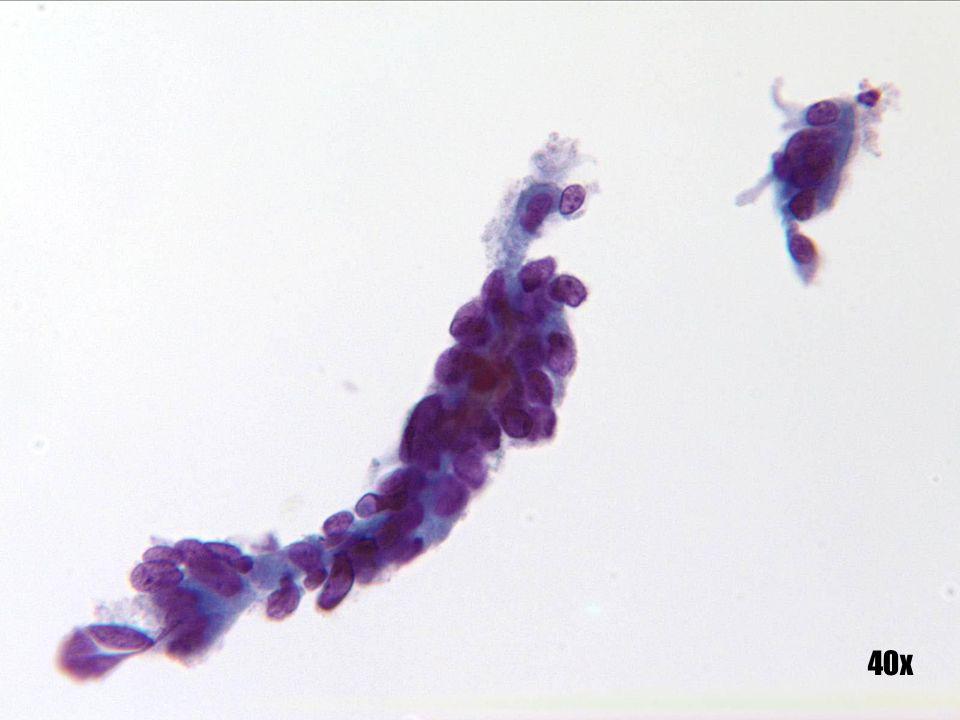 Metaplasia tubárica •En algunas ocasiones, un grupo de células puede exhibir atípia nuclear pero sin zónulas adherens ni cilios, como ocurre en este grupo más grande. La banda de células más pequeña que aparece en la esquina superior derecha muestra cilios y es importante destacar las similitudes morfológicas existentes entre estos dos grupos de células.