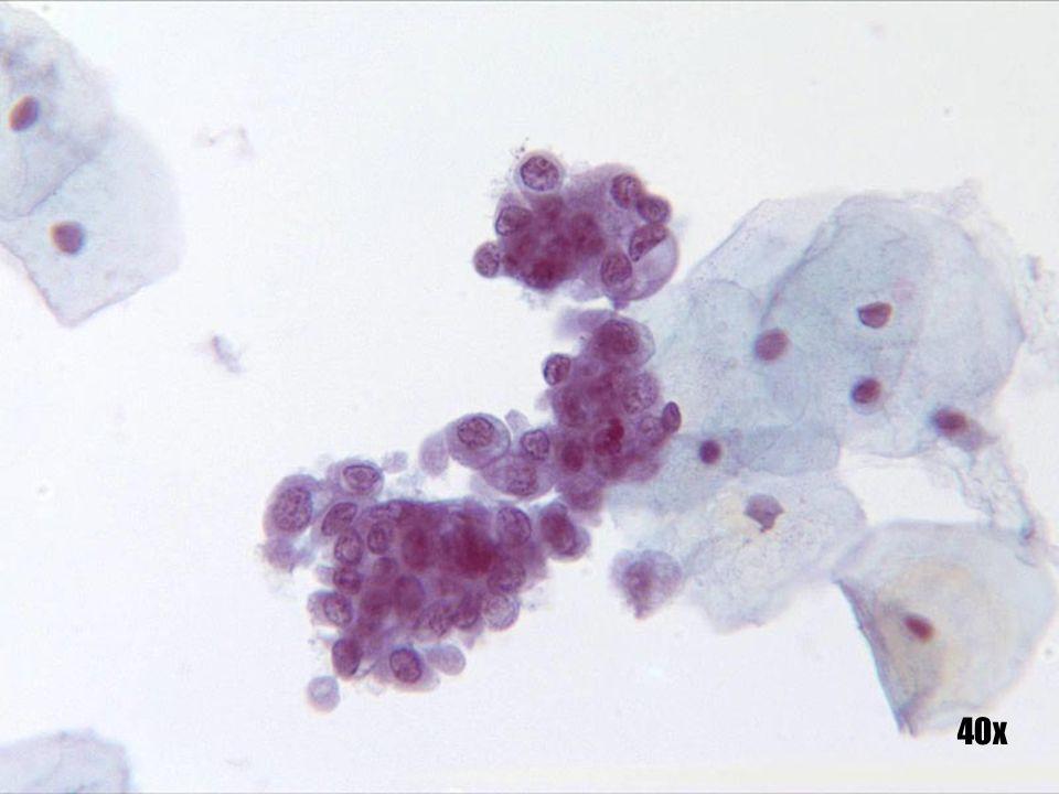 Células endometriales •Grupo tridimensional de células endometriales redondeadas en una arquitectura clásica de racimo de uvas . • Formación de ampollas citoplásmicas característica de la evidencia de células endometriales frescas.