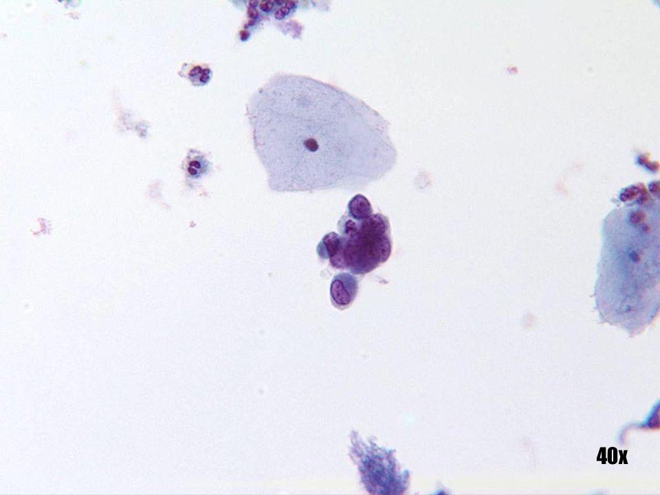 Células endometriales •Pequeño grupo de células con núcleos localizados en la periferia. •El citoplasma es relativamente denso, como se observa frecuentemente en las células de origen endometrial, y no puede utilizarse para distinguir de forma fiable las células de origen escamoso.