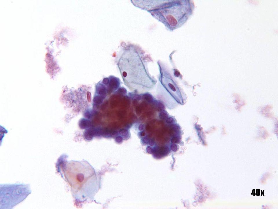 Células endometriales •Grupo tridimensional clásico con núcleo central denso y tinción mantenida. •Los bordes del grupo pueden aparecer ligeramente dentados. •Observe la formación de ampollas citoplásmicas.