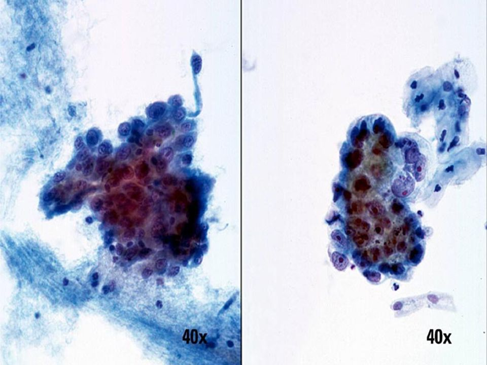 Carcinoma escamoso no queratinizante vs
