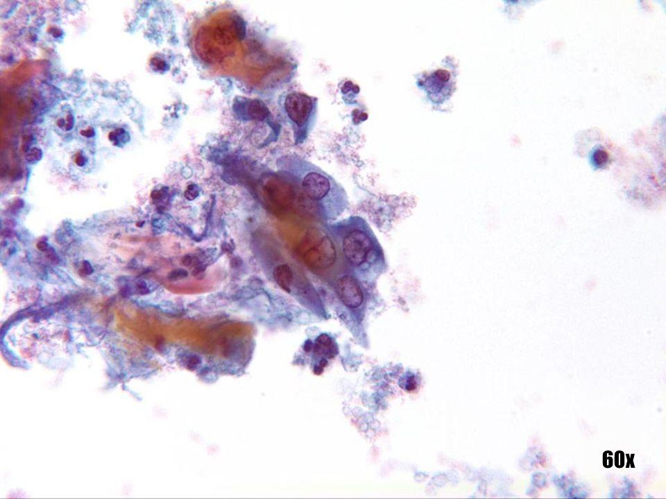 Carcinoma escamoso •Núcleos eucromáticos con apariencia abierta vacante y membranas nucleares engrosadas. •Queratina en el fondo, junto con sangre y restos necróticos