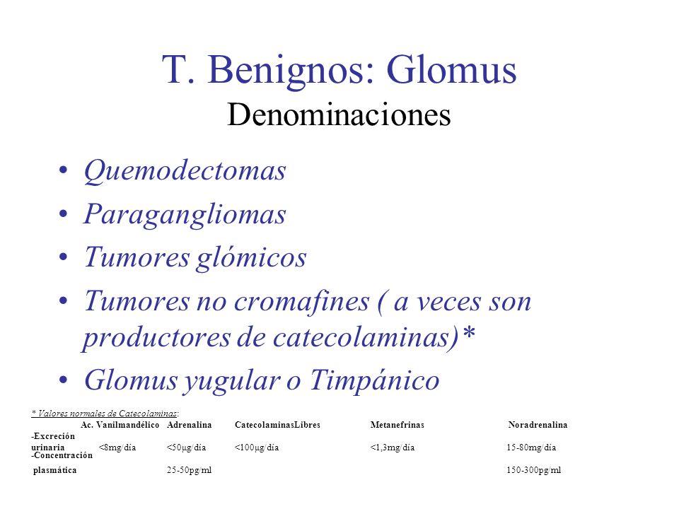 T. Benignos: Glomus Denominaciones