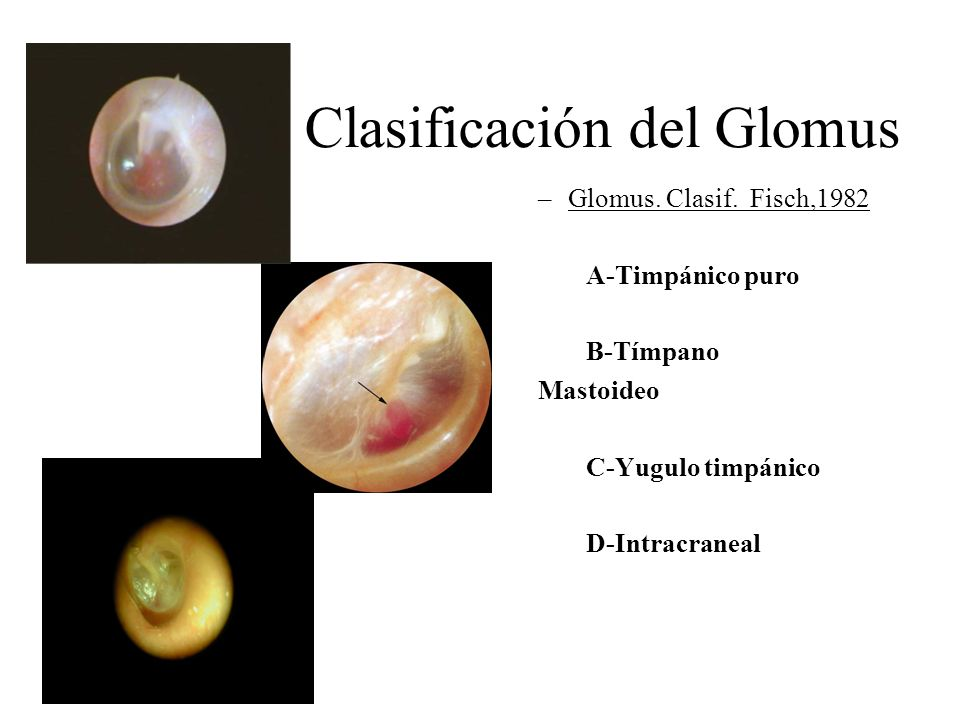 Clasificación del Glomus