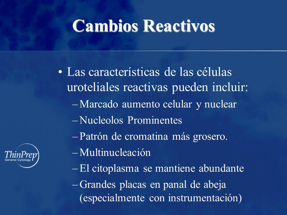 Cambios Reactivos Las características de las células uroteliales reactivas pueden incluir: Marcado aumento celular y nuclear.