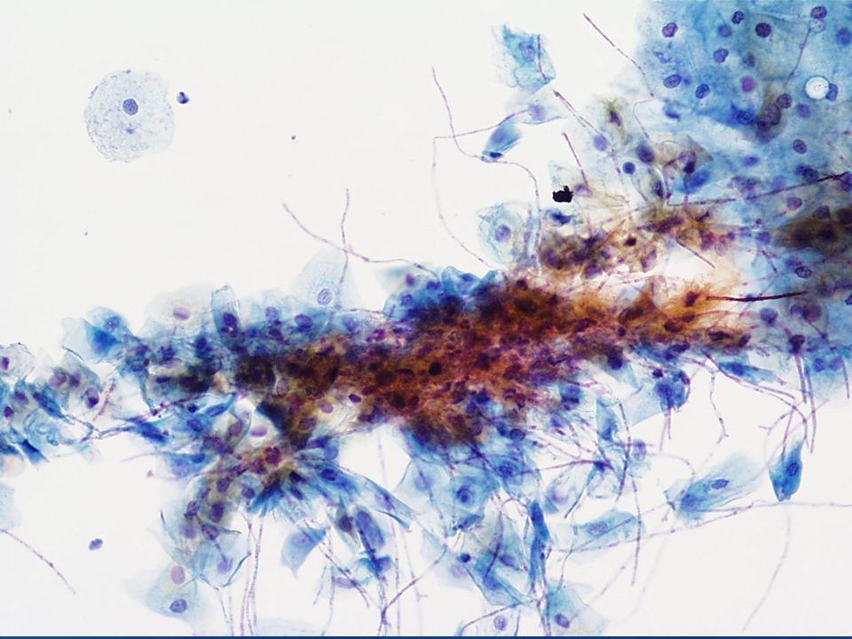Candida spp puede ser fácilmente identificada a bajo aumento (20X)