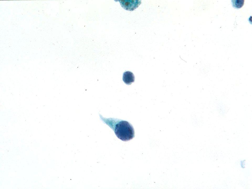A gran aumento (40X) dos células infectadas con poliomavirus, observar la naturaleza plasmacitoide de la célula de más abajo.