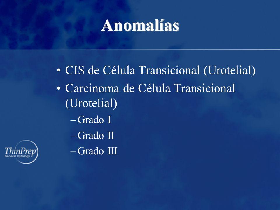 Anomalías CIS de Célula Transicional (Urotelial)