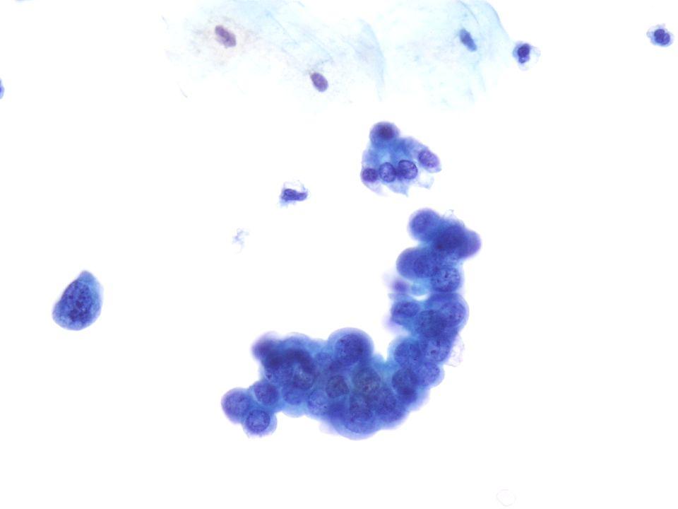 Imagen a 40X de un Carcinoma de Célula Transicional de Grado I-II confirmado por biopsia.