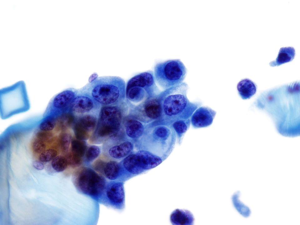 Células malignas pleomórficas a 40X. Imagen de una orina cateterizada