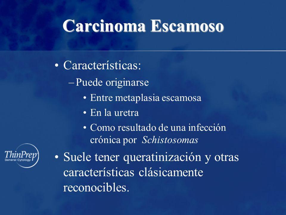 Carcinoma Escamoso Características: