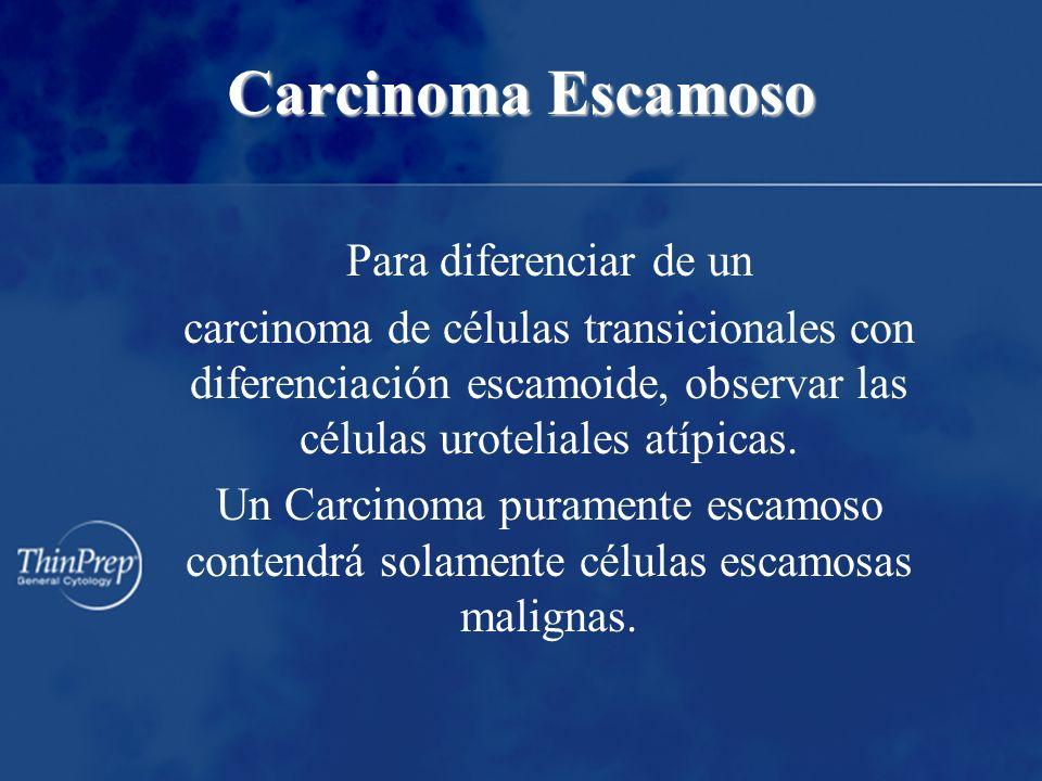 Carcinoma Escamoso Para diferenciar de un