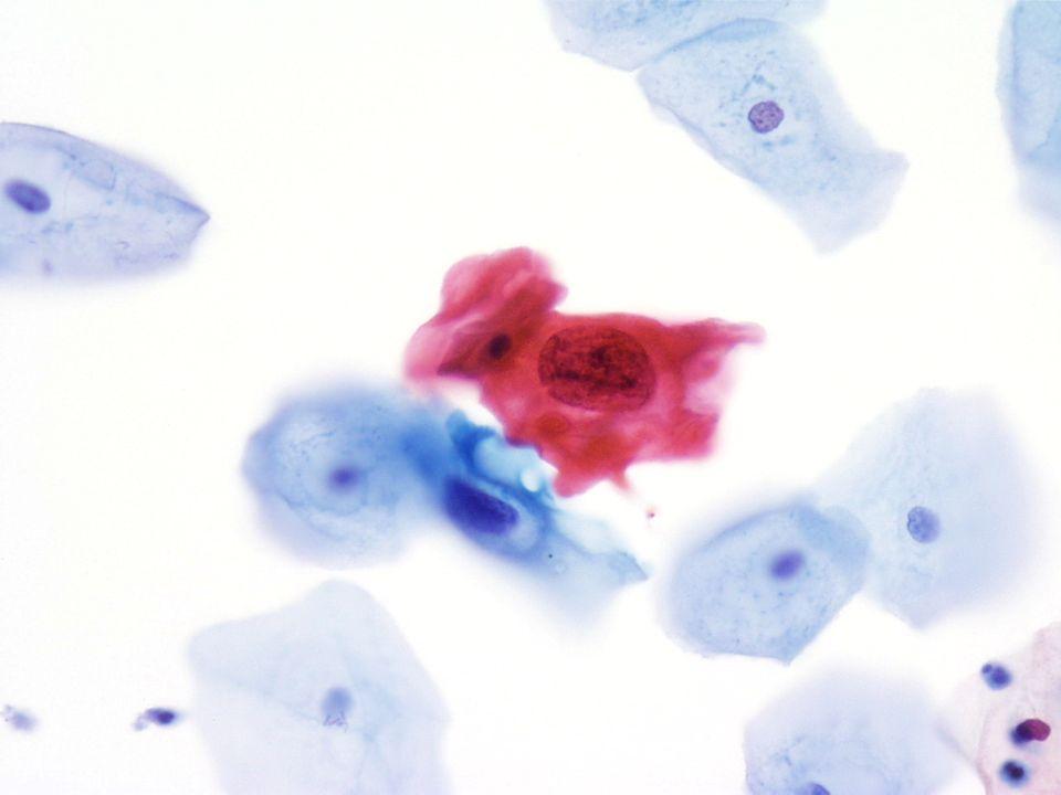 40X Imagen de células escamosas atípicas en una orina espontánea de una paciente femenina.
