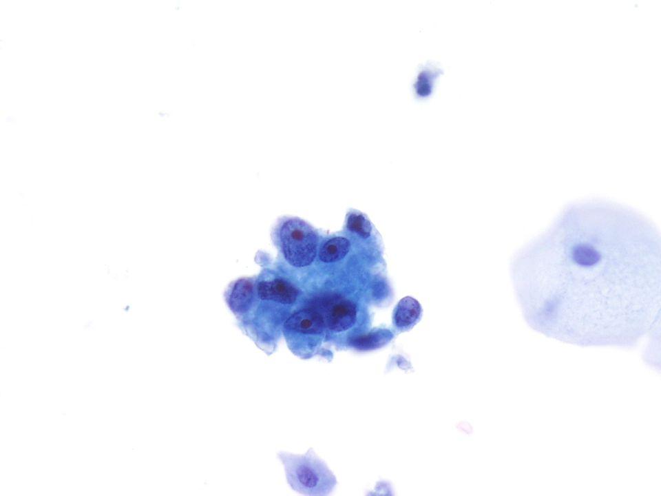 (40X) Imagen de un Adenocarcinoma, NOS de una orina espontánea