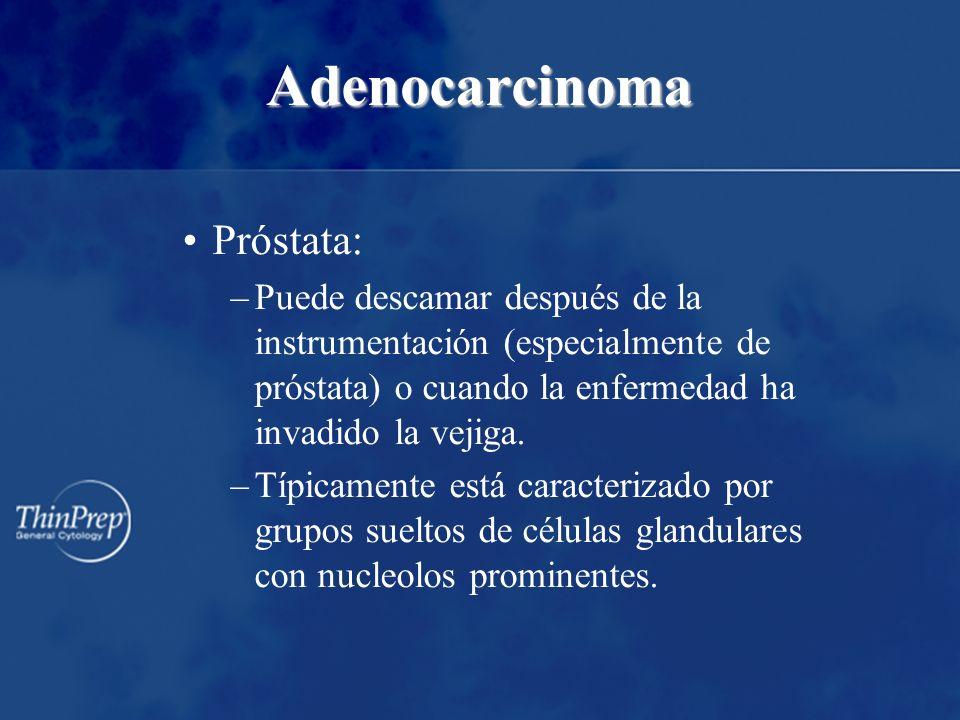 Adenocarcinoma Próstata: