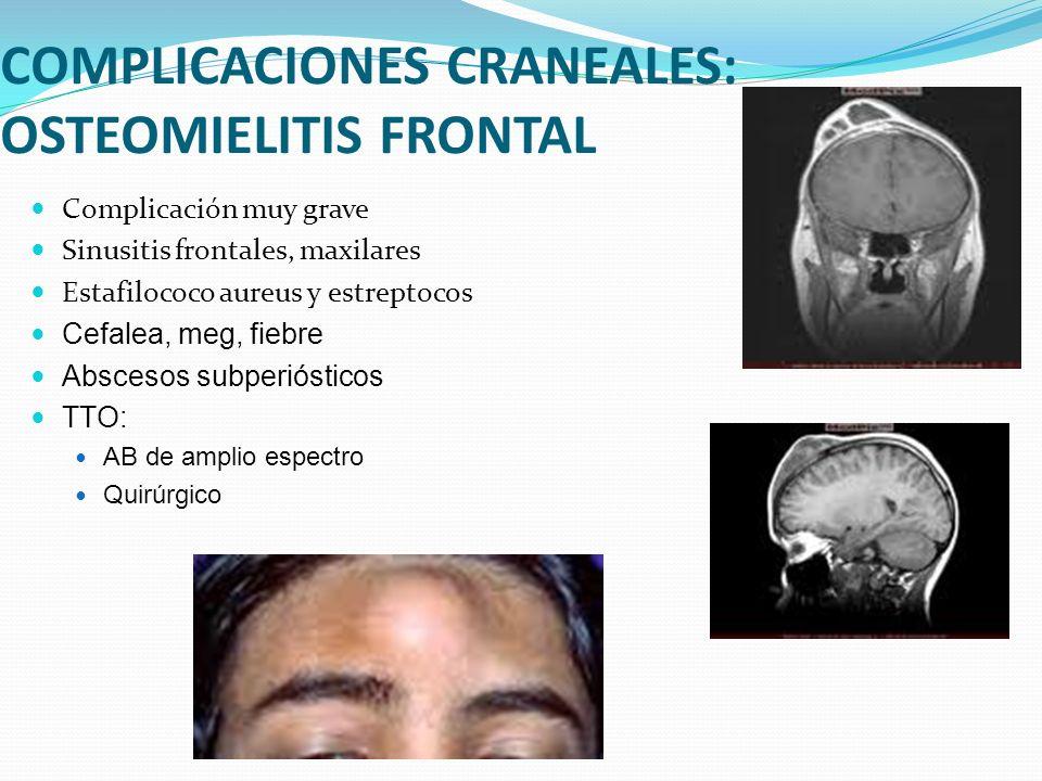 COMPLICACIONES CRANEALES: OSTEOMIELITIS FRONTAL