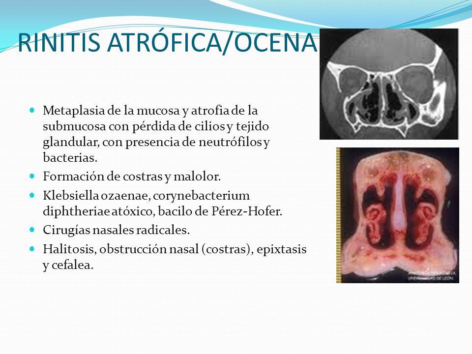 RINITIS ATRÓFICA/OCENA