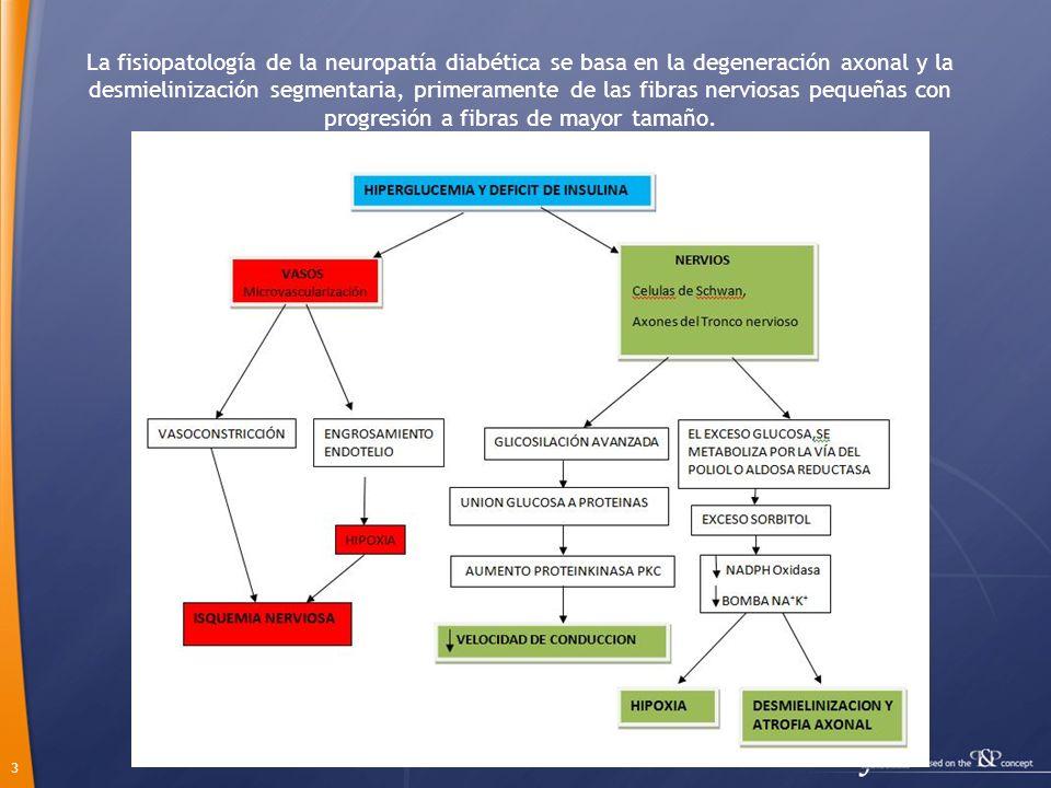 La fisiopatología de la neuropatía diabética se basa en la degeneración axonal y la desmielinización segmentaria, primeramente de las fibras nerviosas pequeñas con progresión a fibras de mayor tamaño.
