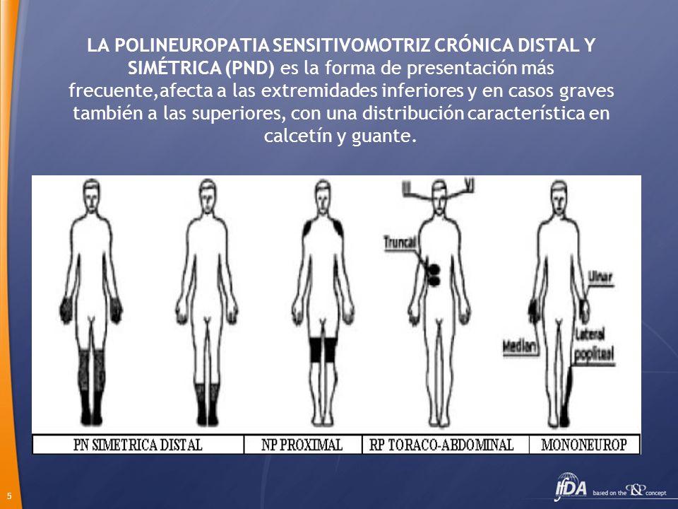 LA POLINEUROPATIA SENSITIVOMOTRIZ CRÓNICA DISTAL Y SIMÉTRICA (PND) es la forma de presentación más frecuente,afecta a las extremidades inferiores y en casos graves también a las superiores, con una distribución característica en calcetín y guante.