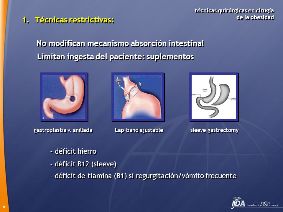 gastroplastia v. anillada