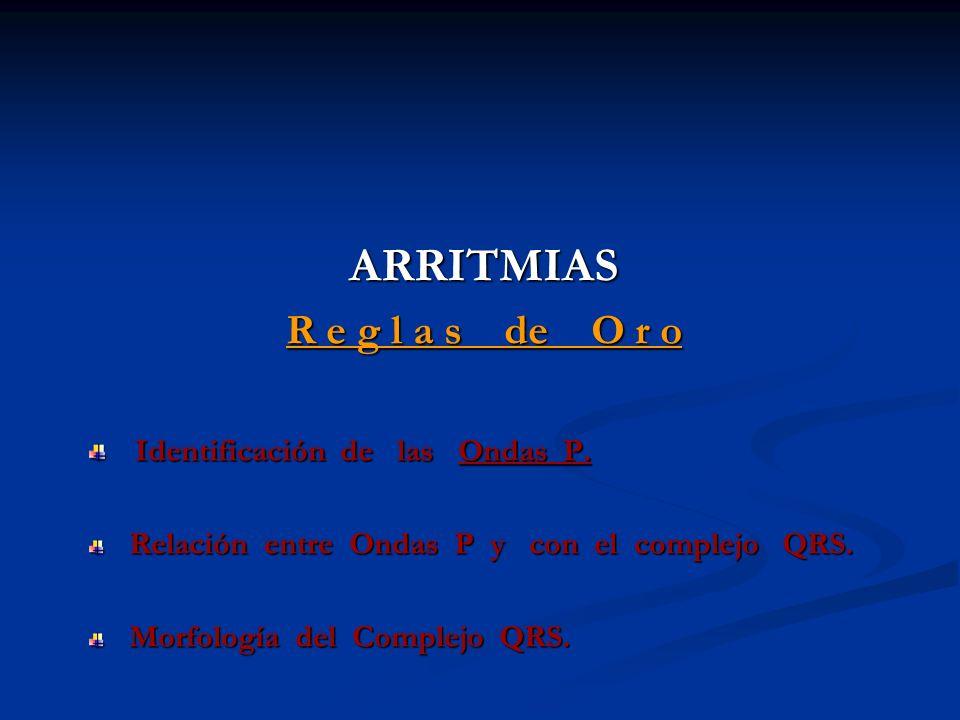 ARRITMIAS R e g l a s de O r o Identificación de las Ondas P.