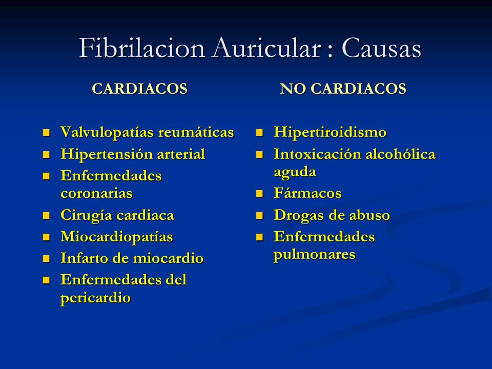 Fibrilacion Auricular : Causas