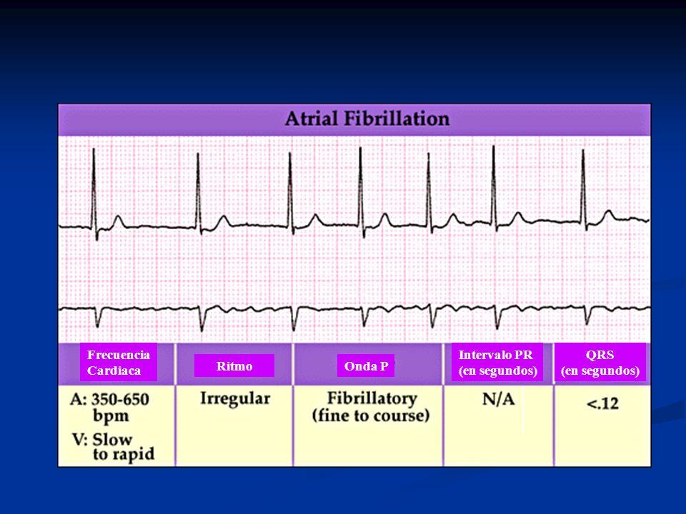 Frecuencia Cardiaca Intervalo PR (en segundos) QRS (en segundos) Ritmo Onda P