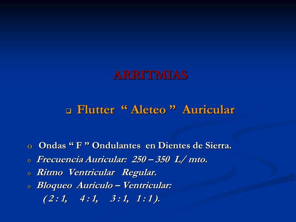 Flutter Aleteo Auricular