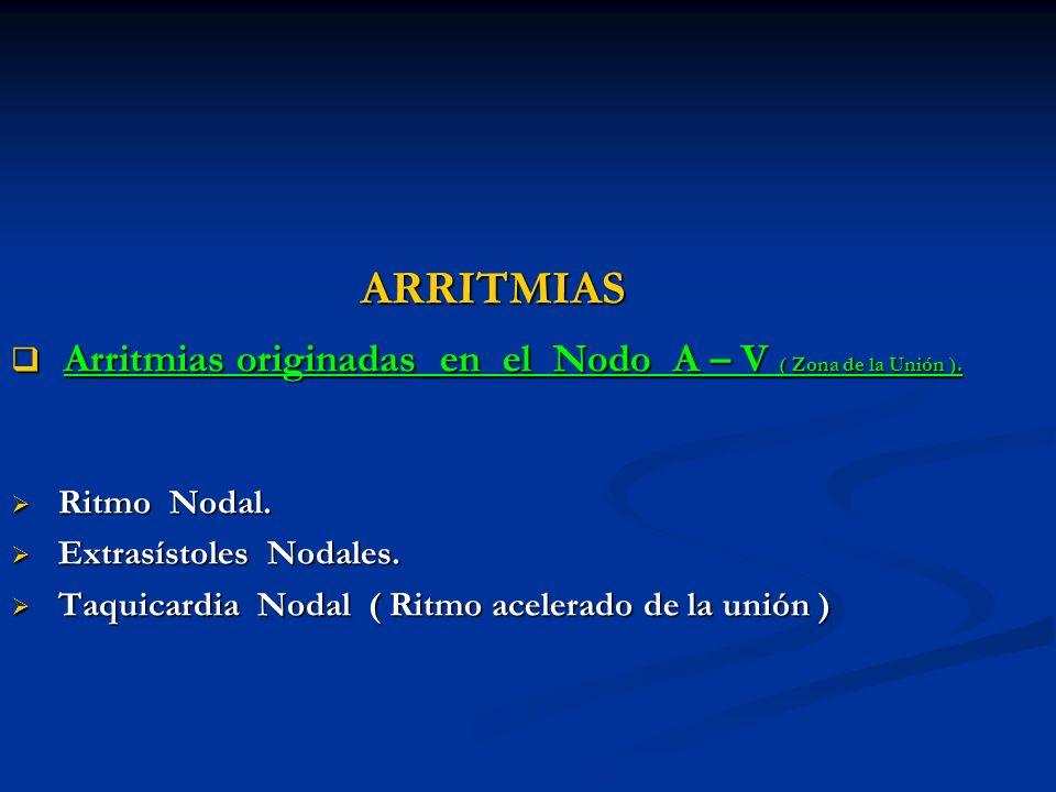 Arritmias originadas en el Nodo A – V ( Zona de la Unión ).