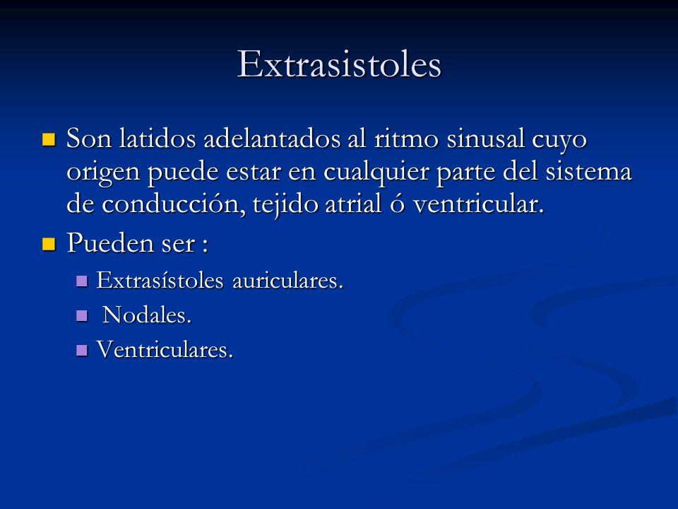 Extrasistoles