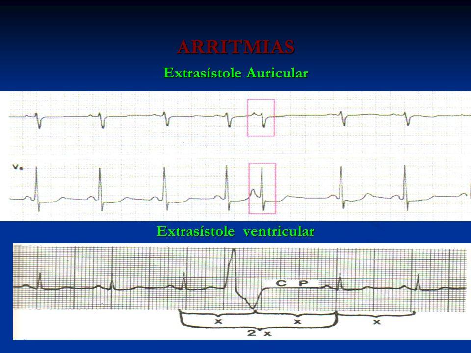 ARRITMIAS Extrasístole Auricular Extrasístole ventricular