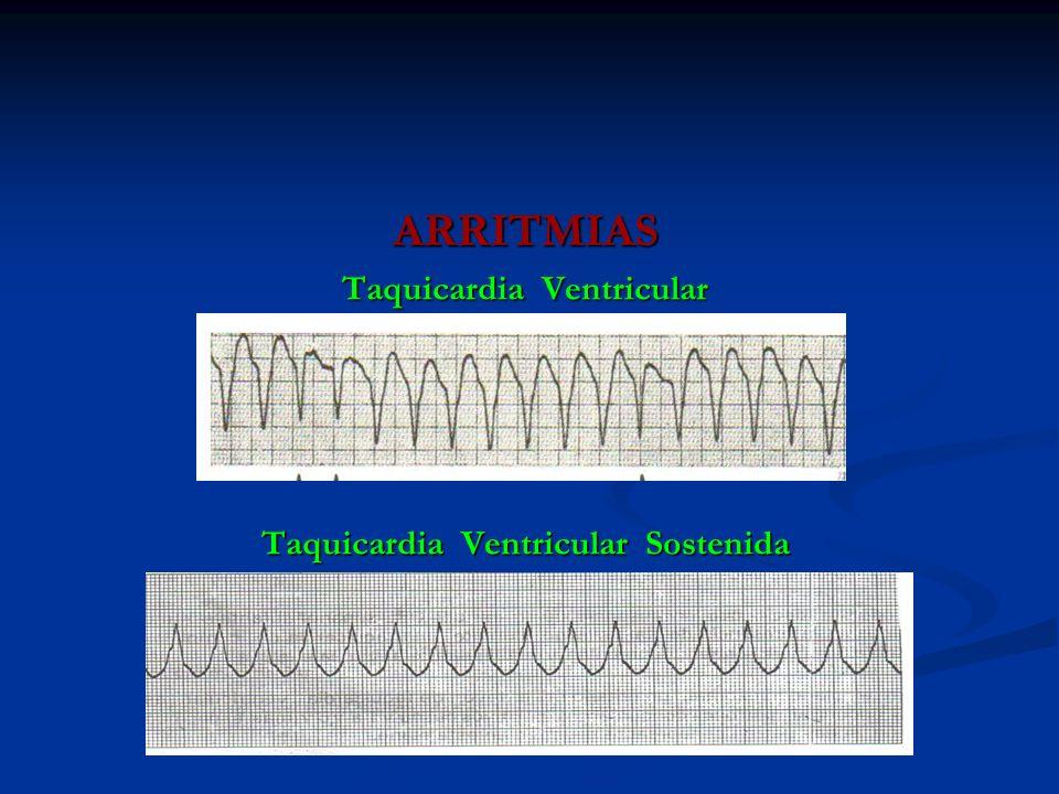 ARRITMIAS Taquicardia Ventricular Taquicardia Ventricular Sostenida